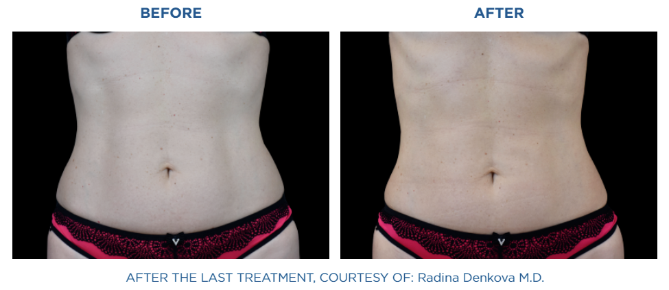 Emsculpt NEO before and after treatment real patient result at Reston Dermatology