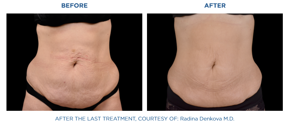 Emsculpt NEO abdomen area before and after treatment at Reston Dermatology