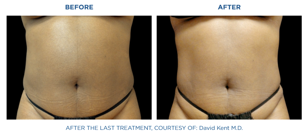 before and after picture of Emsculpt NEO treatment in Reston, VA