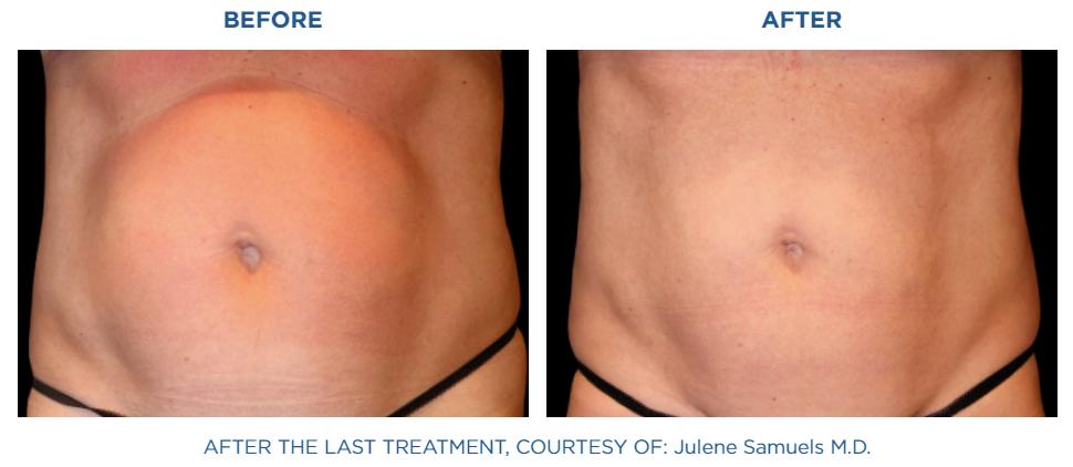 Emsculpt NEO treatment real patient result at Reston Dermatology