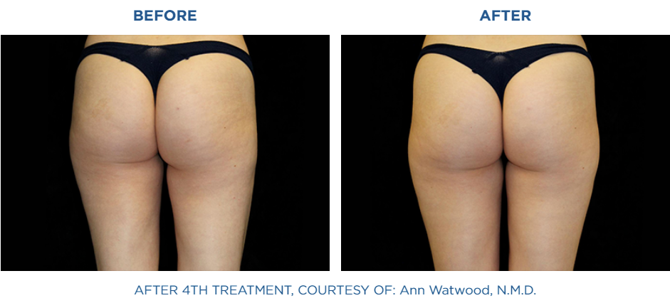 Woman buttocks before and after treatment with Emtone