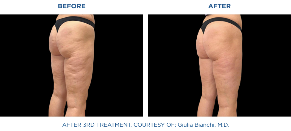 Emtone before and after treatment in buttocks area