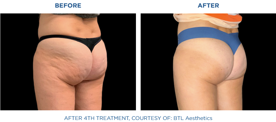 Female buttocks before and after treatment with Emtone