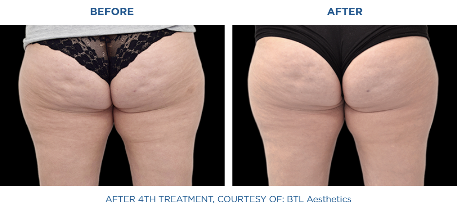 Female buttocks before and after Emtone treatment